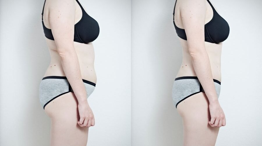 Best Ways to Lose Belly Fat In a Week, According to Experts - cover